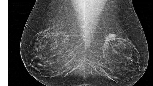 La obesidad puede promover la resistencia a la terapia antiangiogénica para el cáncer de mama