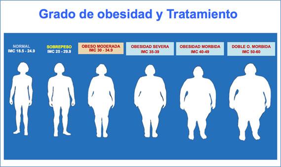 Obesidad grado 1 tratamiento