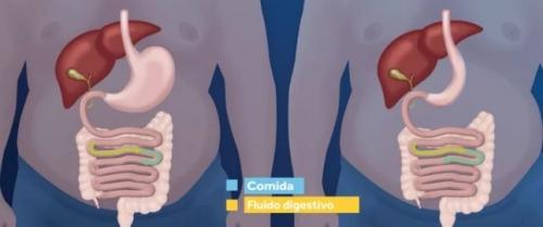 Gastrectomía Vertical (Tubo o Manga Gástrica)