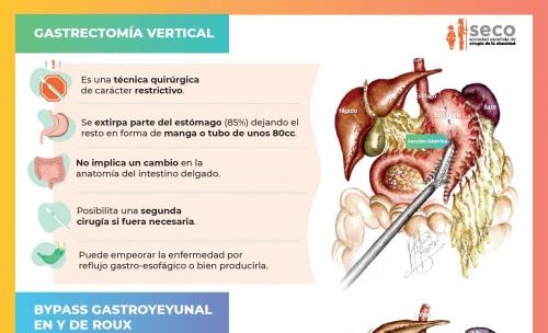 Infografía comparativa del bypass gástrico y la gastrectomia vertical