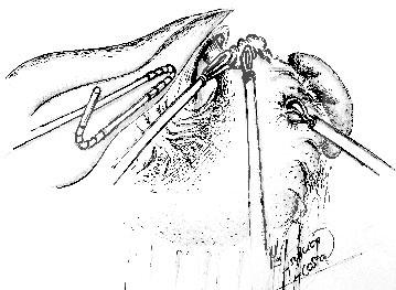 Atlas Quirúrgico
